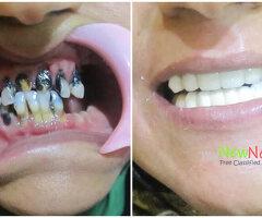 Teeth braces cost in Chennai